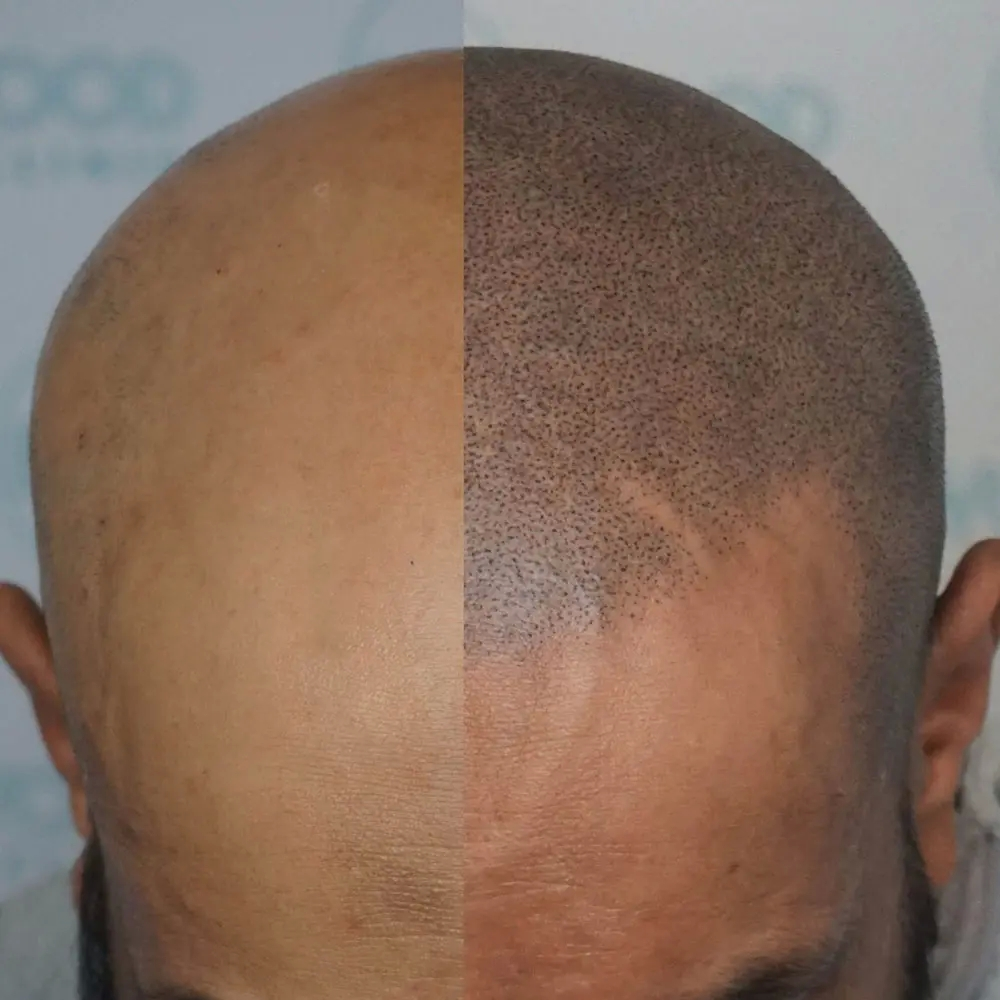 Why have Scalp Micropigmentation